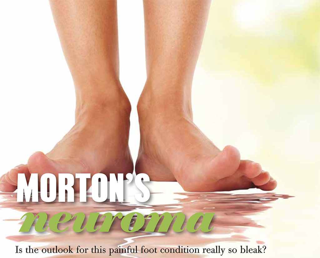Morton's Neuroma - is the outlook bleak?